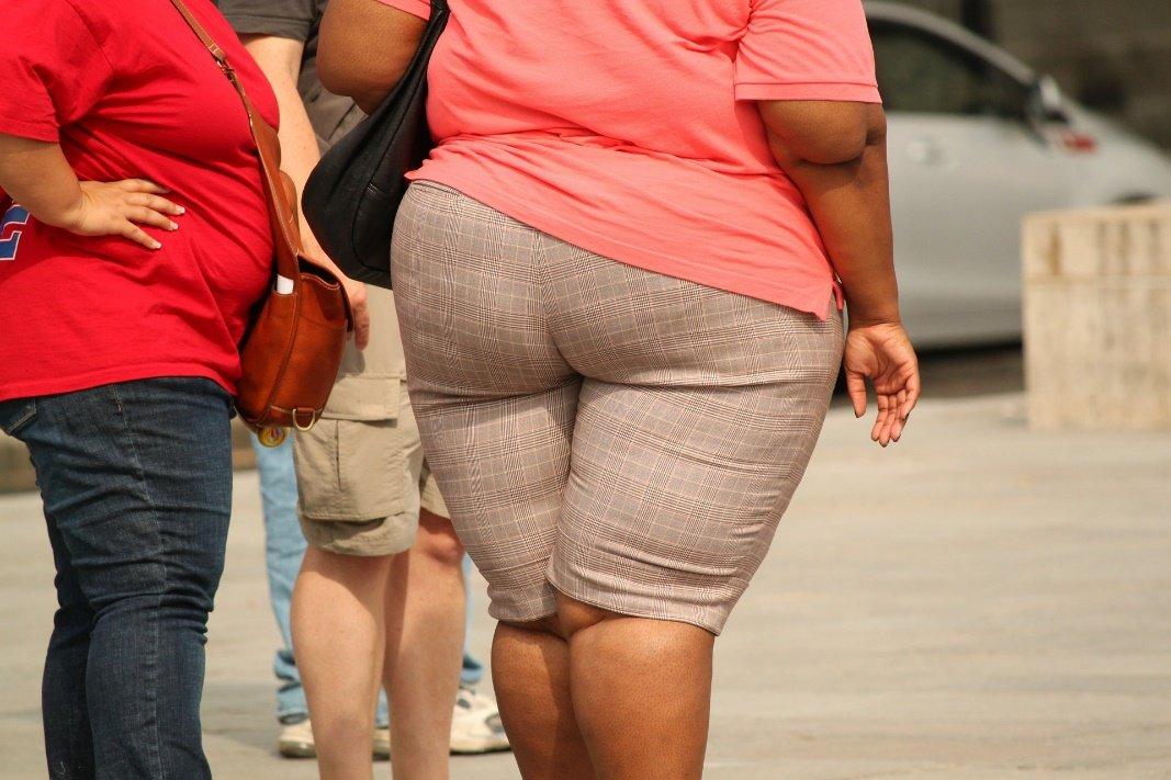 Obesidad homogénea
