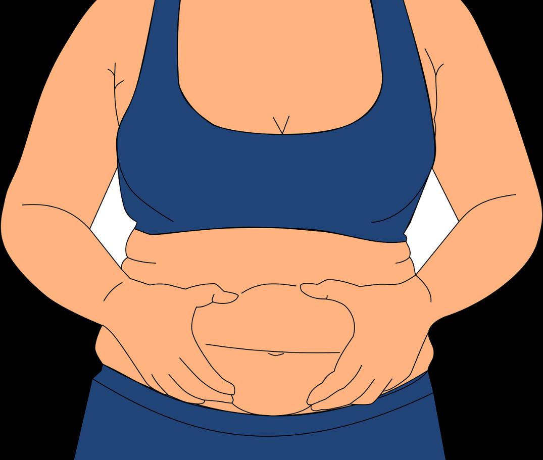 Clasificación según la obesidad