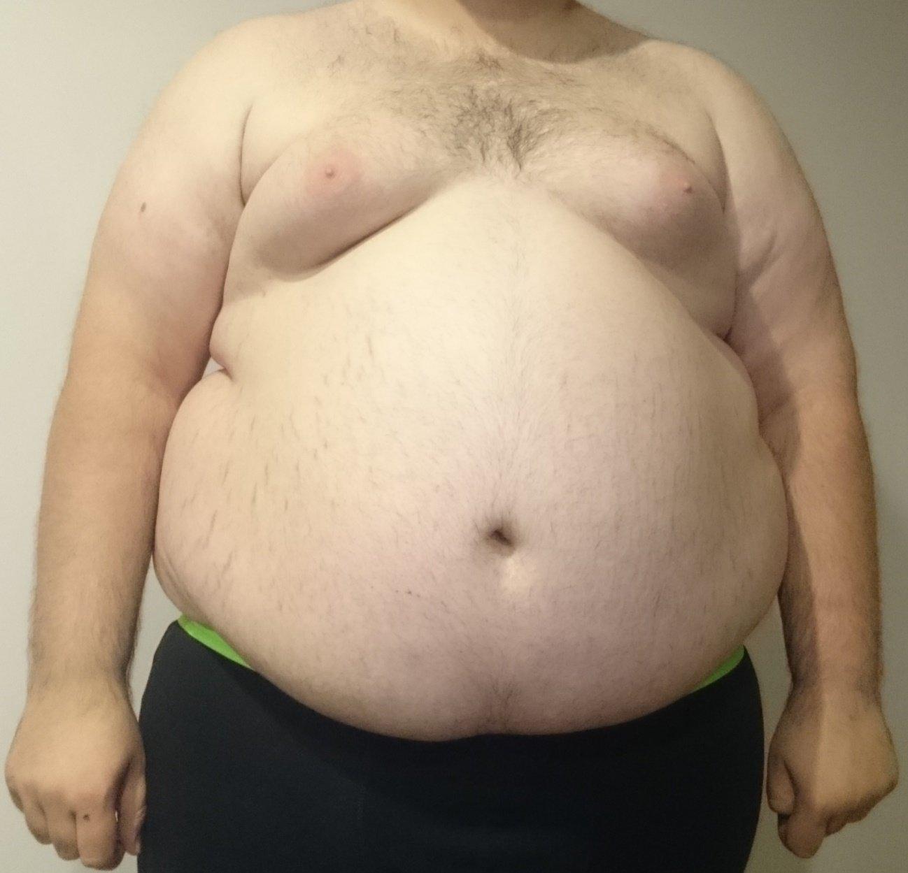 Obesidad tipo manzana